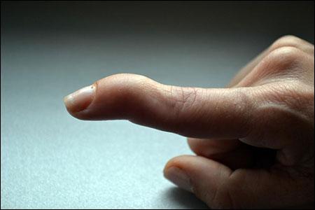 Mallet Finger, Baseball Finger