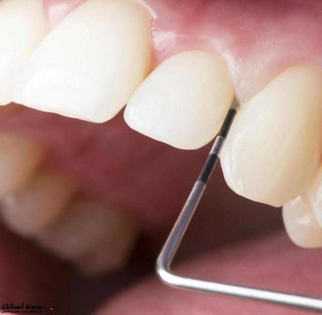 علاج تسوس الأسنان: كيفية إزالة تسوس الأسنان