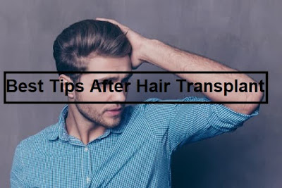 hair transplant,after hair transplant,great tips after hair transplant,best tips after hair transplant,transplant,hair care after hair transplant,hair,hair transplantation