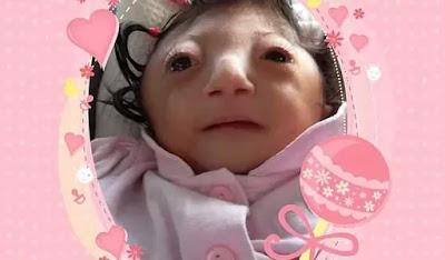 Ajude a pequena Ruhama a realizar a procedimento médico na Itália