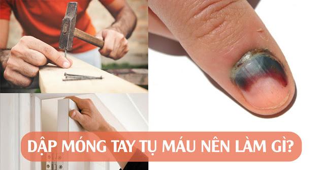 Sơ cứu nhanh khi bị dập móng tay tụ máu bầm