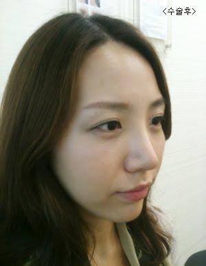 짱이뻐! - Just Had Korea Rhinoplasty Before My Wedding