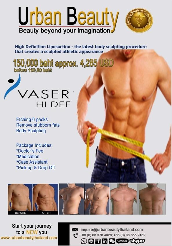 New Vaser Liposuction Thailand | Best Liposuction in Bangkok !!
