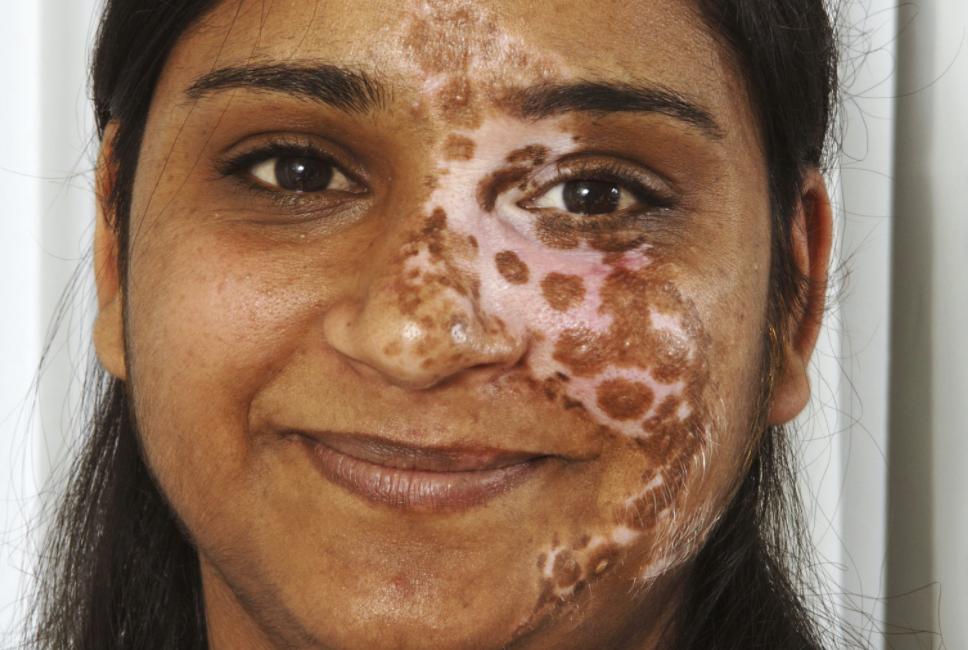 البهاق وفقدان لون الجلد