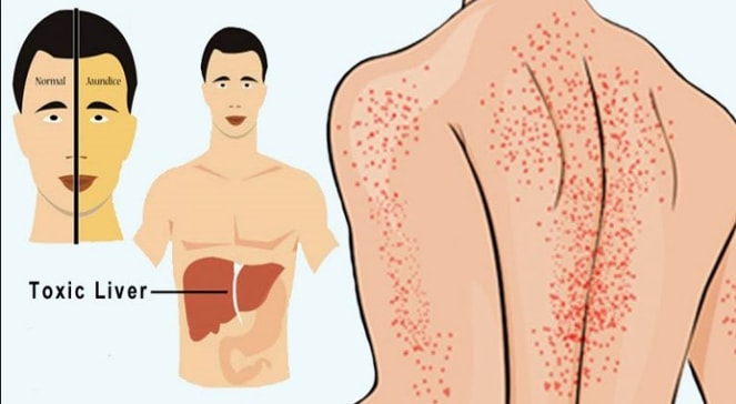 Here Are The 12 Symptoms Of A Damaged Liver! If You Have Them, Go To The Doctor Quickly