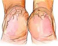 treatment for dry cracked heels(phati airhiyan) in urdu