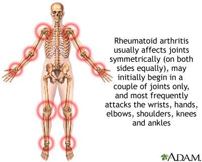 schwere rheumatoide arthritis