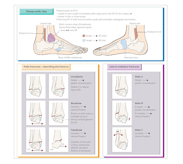 Tibia, Ankle and Foot Injuries