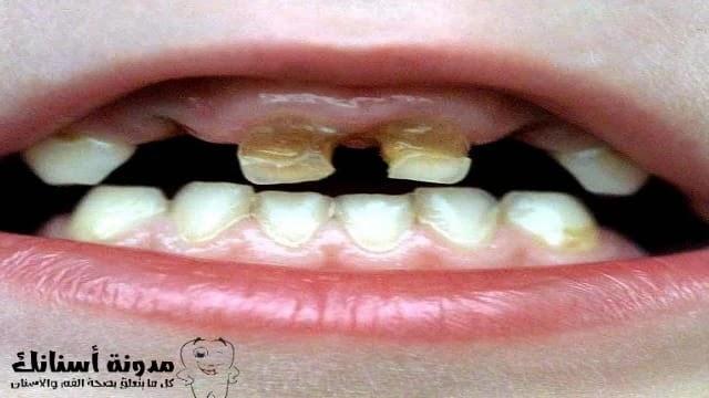 ماذا تفعل من أجل تسوس أسنان الأطفال؟
