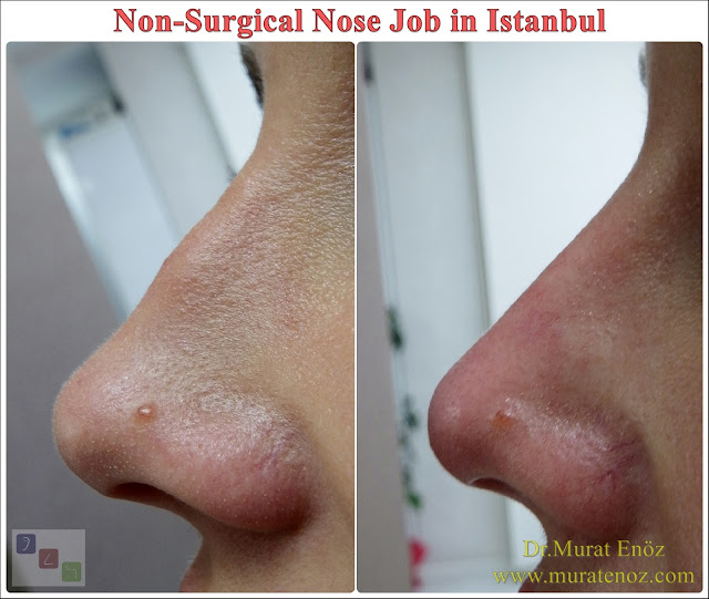 Nose filler injection video - Non-surgical nose job in İstanbul - Non surgical nose job with filler in İstanbul - Non-surgical rhinoplasty in İstanbul - Nose tip filler augmentation in İstanbul - Nose filler injection in Turkey - The 5 Minute Nose Job in İstanbul - Turkey - Non-surgical nose job in Istanbul - Non-surgical nose job istanbul - Nose filler injection Turkey - Injectable nose job - Liquid rhinoplasty