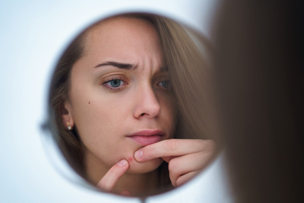 what are the Causes of Pimples and Acne?