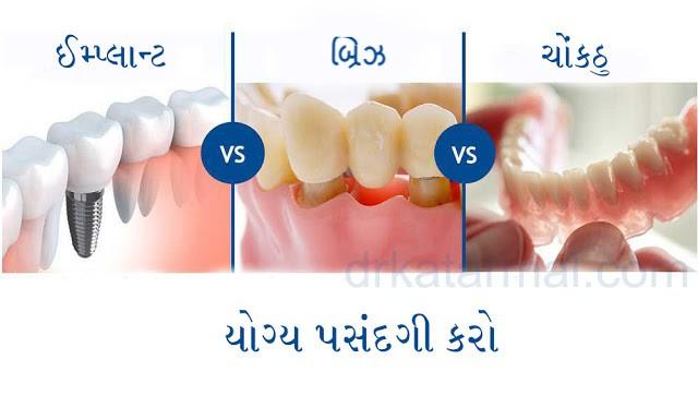 ડેન્ટલ ઈમ્પ્લાન્ટ - ગુમાવેલા દાંત ફરીથી બેસાડવા માટેનો શ્રેષ્ઠ ઉપાય