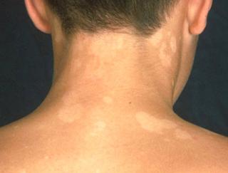 Foto Obat bintik bintik putih panu di wajah di apotik