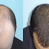 How To Stop Baldness, Hair Loss And Hair Fall With Only 1 Solution Using Home Remedies