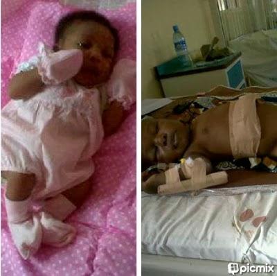 baby halle liver transplant