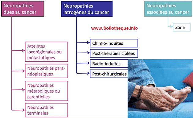 Quels sont les effets de la neuropathie ?