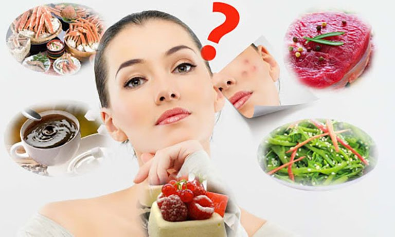 Người bị mụn thì nên ăn gì ?