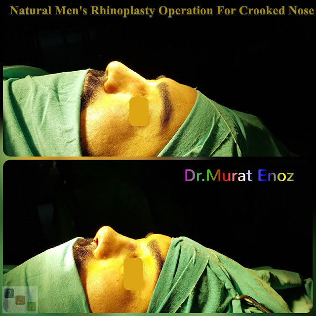 Natural Men's Nose Aesthetic Operation For Crooked Nose - Rhinoplasty For Men Istanbul