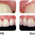 Zirconium, The New Leader in Dentistry