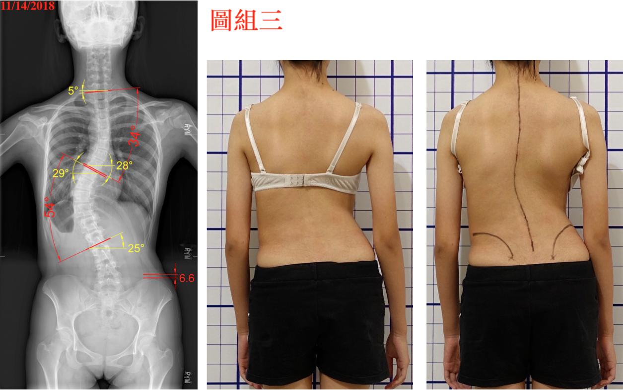 脊椎側彎, 脊椎側彎矯正, 脊椎側彎治療, 脊椎側彎手術, 脊椎側彎 背架