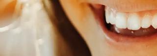 Pentingnya Memeriksa Gigi Secara Rutin Ke Dokter Gigi