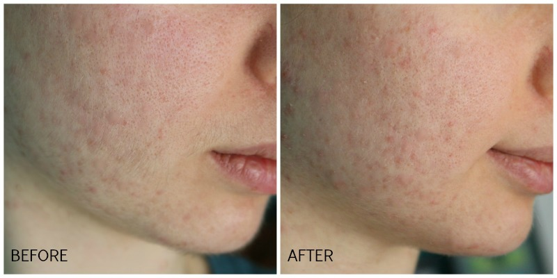 Dermaflash Facial Exfoliating Device Before After