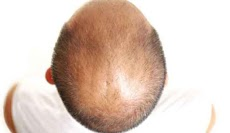Male Pattern Baldness - How I Got My Hair Back