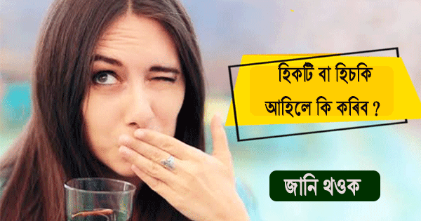 Health tricks to immediately stop Hiccups