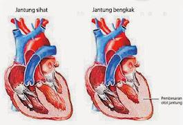 obat jantung bengkak herbal