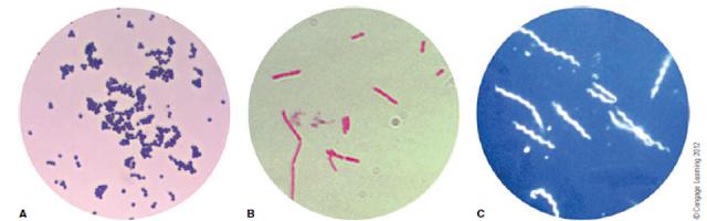 Tiga jenis morfologi bakteri: (A) cocci; (B) basil; dan (C) spiral. Bakteri yang ditunjukkan di A dan B diwarnai Gram; C adalah Borrelia burgdorferi yang dilihat menggunakan mikroskop medan gelap
