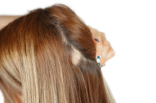 The Shocking Truth About Female Hair Loss