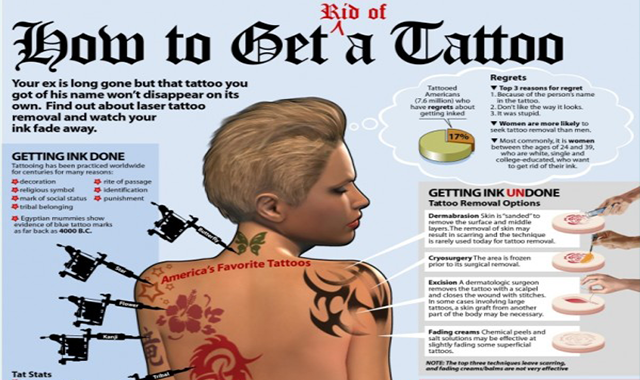 How to Get Rid of a Tattoo #infographic