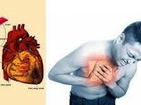 Cara mengobati penyakit jantung dengan menggunakan obat tradisional