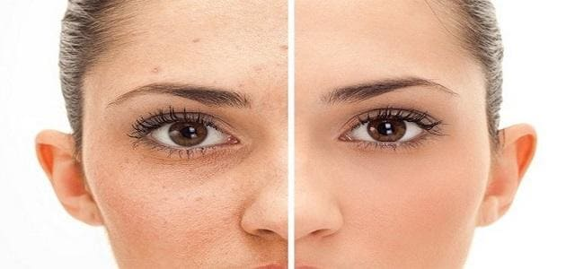 Detoxing for clear skin