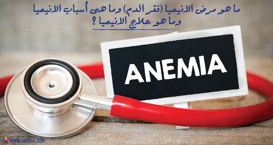 ما هو مرض الانيميا (فقر الدم) وما هى أسباب الانيميا وما هو علاج الانيميا ؟