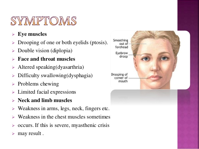 facial-weakness-multiple-sclerosis