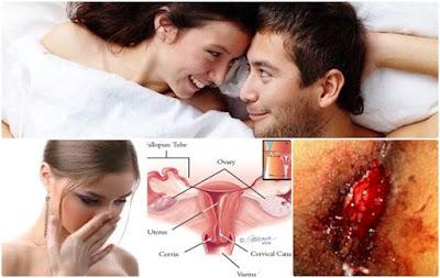 Alat Kelamin Keluar Darah Saat Berhubungan Intim