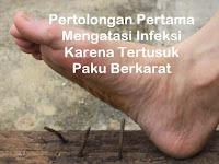Pertolongan Pertama Mengatasi Infeksi Karena Tertusuk Paku Berkarat