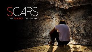 http://livingforeternityministry.blogspot.com/p/scars-marks-of-faith.html