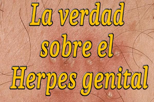 herpes-genital