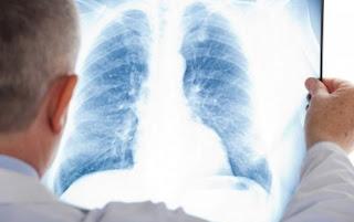 Dokter Radiologi Depok