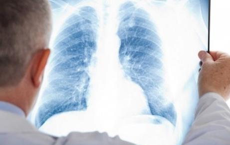 4 Pilihan Rumah Sakit dengan Dokter Spesialis Radiologi di Depok Terbaik