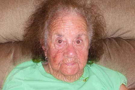 How Dotty looked when she was experiencing Sundowning syndrome.