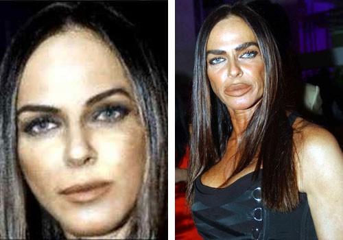 Michaela Romanini Before Surgery