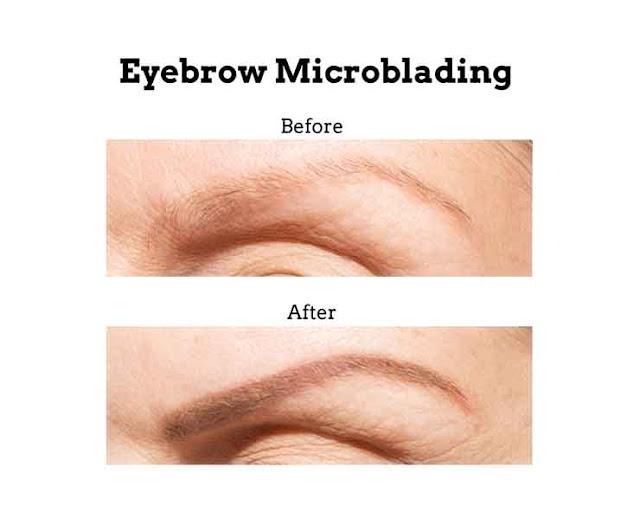 Eyebrow loss