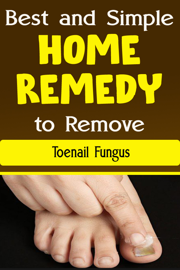 Best and Simple Home Remedy to Remove Toenail Fungus
