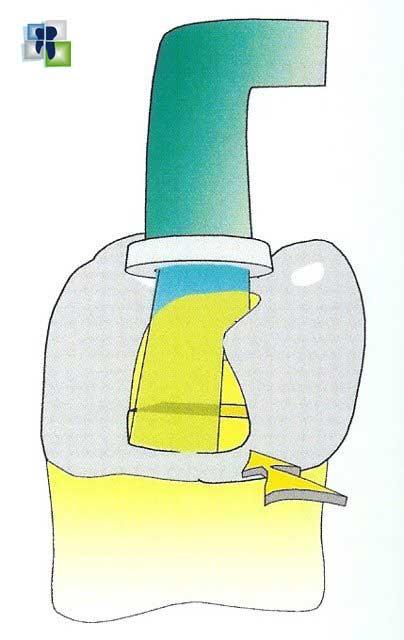 حساسية الأسنان بعد الحشو في ترميمات الكومبوزت الصنف الثاني class II