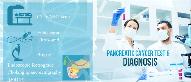 Diagnosis of Pancreatic Cancer