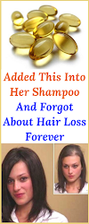 Added This Into Her SHAMPOO And Forgot About HAIR LOSS FOREVER