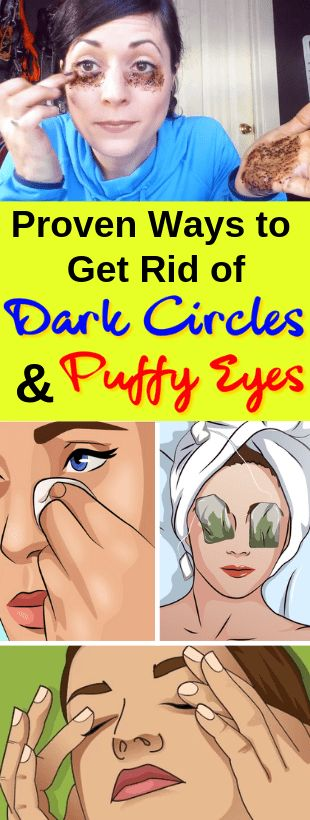Tips to Get Rid of Under Eye Circles